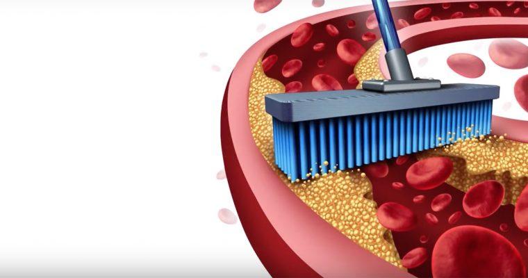 Hogyan javítható az artériák állapota?