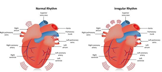 Összefüggés a szénhidrátszegény diéták és a pitvarfibrilláció között?